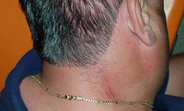 Το ξύλο στην Αμαλιάδα: Τι έγραψε ο διαιτητής στο Φ.Α- Τι καταγγέλει ο Αστέρας (pics)