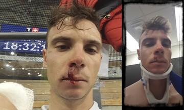 Χάλκινος και... ματωμένος ο Βολικάκης - Σφοδρή πτώση του πρωταθλητή της ποδηλασίας (pics)