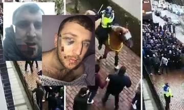 Τρόμος - Δείτε τον μαχαιρωμένο στο πρόσωπο οπαδό της Έβερτον - Σκληρές εικόνες