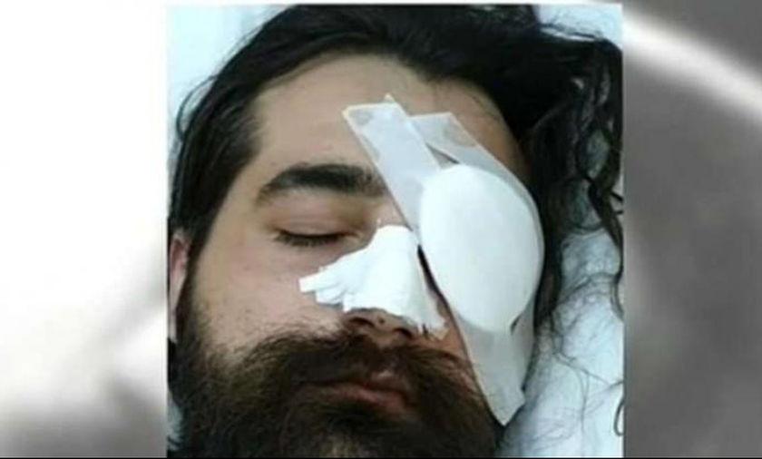 Ο οπαδός που έχασε το ένα του μάτι στο ΟΑΚΑ ετοιμάζεται για μηνύσεις και αγωγές