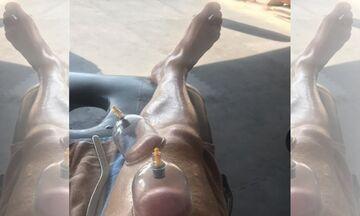 Κι όμως... Αυτό είναι το πόδι του Φορτούνη (pic)
