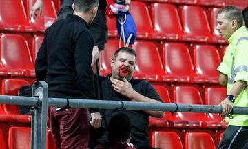 Φωτογραφίες με ματωμένους οπαδούς της Μπάγερν! (pics)