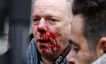 «Αστυνομία, αστυνομία» - Βίντεο από τη στιγμή της επίθεσης στον δημοσιογράφο της Deutsche Welle