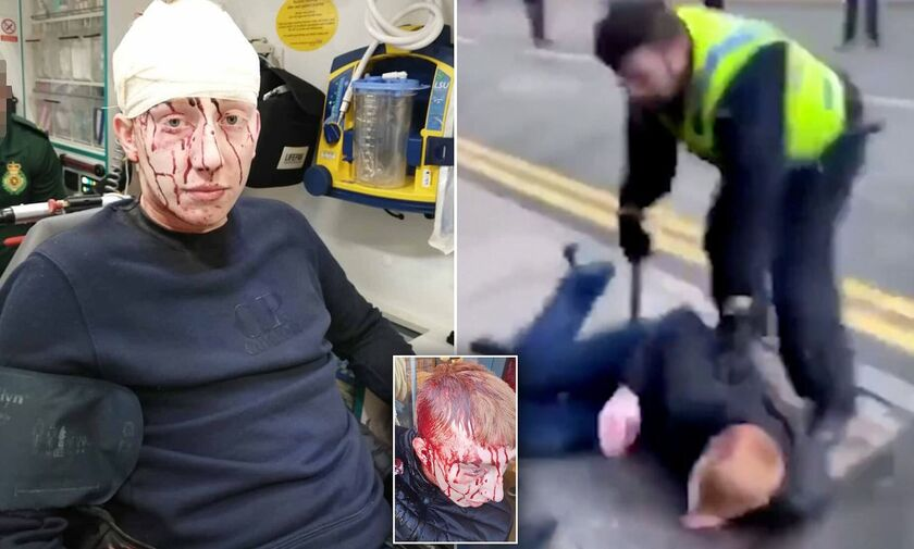 Σάλος στο Μπάρνσλεϊ – Σέφιλντ Γουένσντεϊ με αστυνομικό που άνοιξε το κεφάλι εφήβου! (vid)