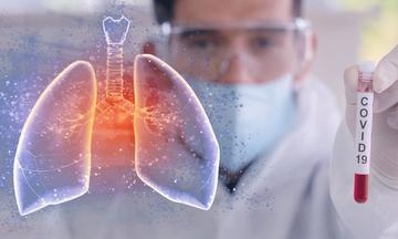 Κορoνοϊός: Ο καπνιστής, τι συμβαίνει στους πνεύμονες και οι τροφές που τους καθαρίζουν