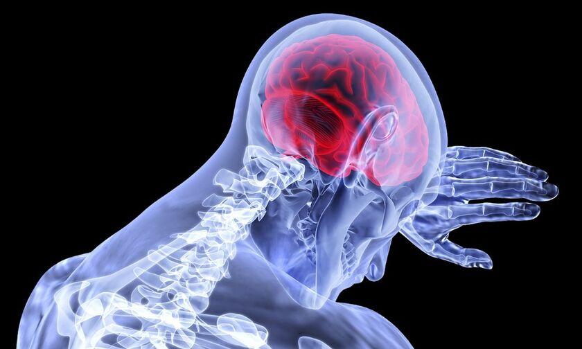 Mίνι εγκεφαλικό: Μπορεί να το έχεις πάθει - Με ποια συμπτώματα χτυπάει
