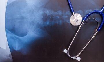 Οστεοπόρωση, μια «σιωπηλή» νόσος; Όχι πια