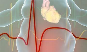 Καρδιομεταβολικός κίνδυνος και lockdown