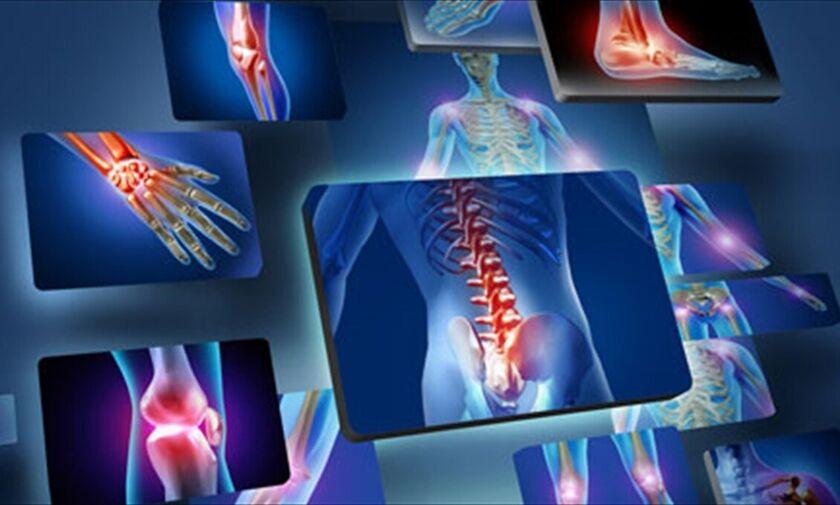 Οστεοπόρωση: Τι πρέπει να προσέξετε για την υγεία των οστών