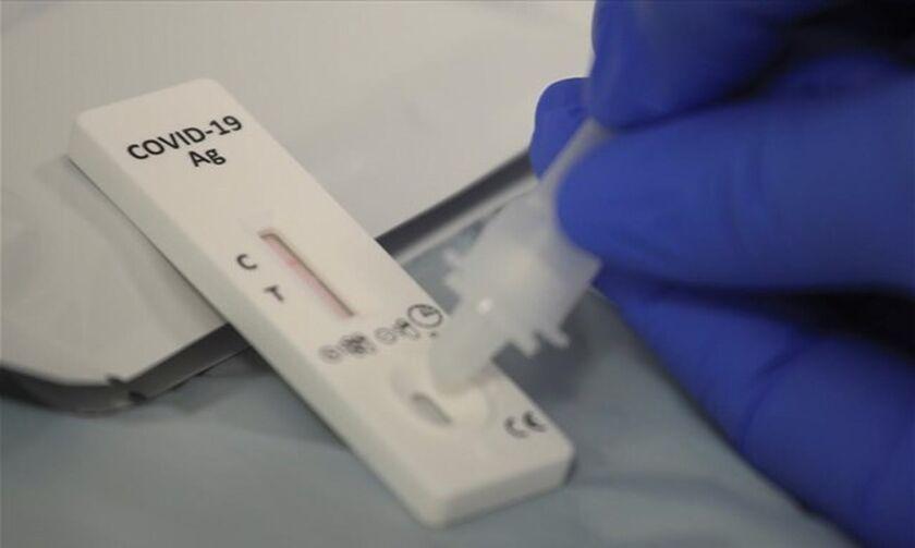 Υποχρεωτικά rapid tests δύο φορές την εβδομάδα για προσωπικό του ΕΣΥ που δεν έχει εμβολιαστεί