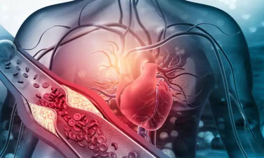 Η «καλή» χοληστερόλη δεν είναι πάντα καλή: Ποιος ο κίνδυνος για την καρδιά!