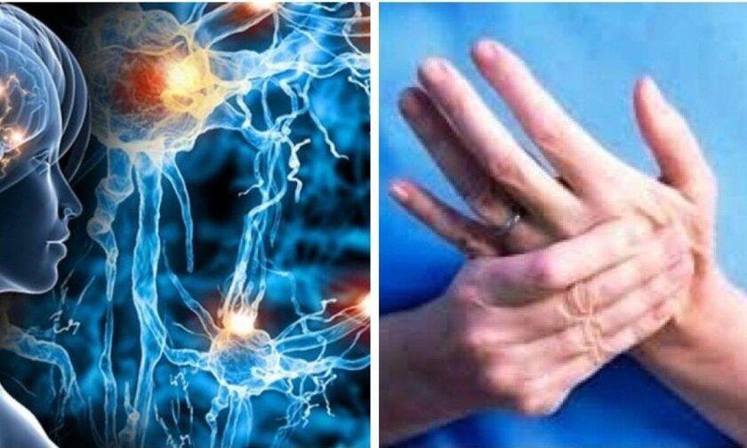 Πολλαπλή Σκλήρυνση: Πιθανό πρώιμο σύμπτωμα αν συμβαίνει αυτό με τα χέρια σας