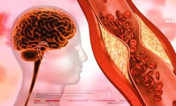 Πώς συνδέεται η χοληστερόλη με το Αλτσχάιμερ: Τι πρέπει να γνωρίζετε διατροφικά