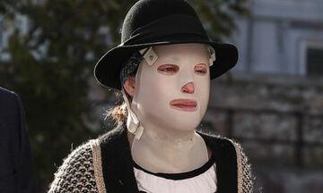 Επίθεση με βιτριόλι: Συγκλόνισε η ψυχίατρος της Ιωάννας - «Άνθρωπος χωρίς ελπίδα»